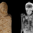 Ancient Egyptian Mummy with x-ray