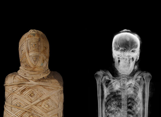 1894a15 view3 xray%20%20ancient%20egyptian%20mummy%20crop1